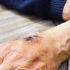 Mengenal Lebih Dalam Penyakit Hemofilia