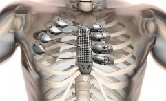 3D Printing Selamatkan Penderita Tumor Dinding Dada