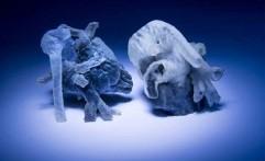 Print 3D Digunakan untuk Lihat Jantung Pasien
