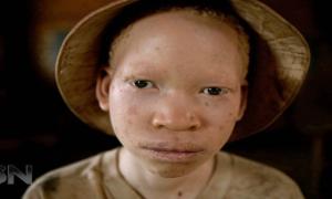 Di Negara ini, Orang Albino Diasingkan dan Diintimidasi