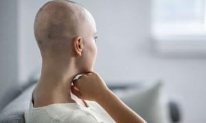 Tidak Perlu Takut Rambut Rontok Karena Kemoterapi