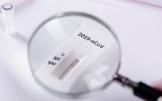 Perbedaan Rapid Test Antibodi dan Antigen dan Kegunaannya