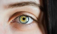Efek Samping Saat Menggunakan Lensa Kontak