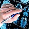 Tanda-tanda Awal Demensia yang Tidak Boleh Diabaikan