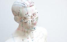 Akupuntur Medis Bantu Atasi Gangguan Tidur
