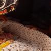 Dinkes Solo Jamin Perawatan Kesehatan Bayi Tanpa Tempurung Kepala