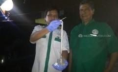 Cacing Pita Sepanjang 2,17 Meter Ditemukan dari Perut Warga Medan