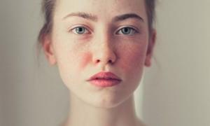 5 Faktor Penyebab Penyakit Rosacea Menurut Ahli Dermatologi