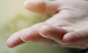 Tangan Kering karena Sering Cuci Tangan? Ini Solusinya!