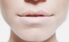 Alami Masalah Bibir Kering dan Pecah-Pecah? Ini Penyebabnya