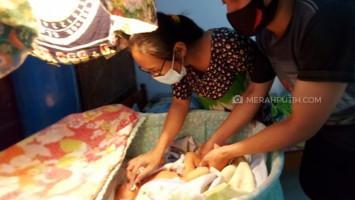 Bayi Tanpa Tempurung Asal Solo Meninggal Dunia