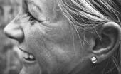 Kenapa Jerawat Bisa Muncul di Telinga?